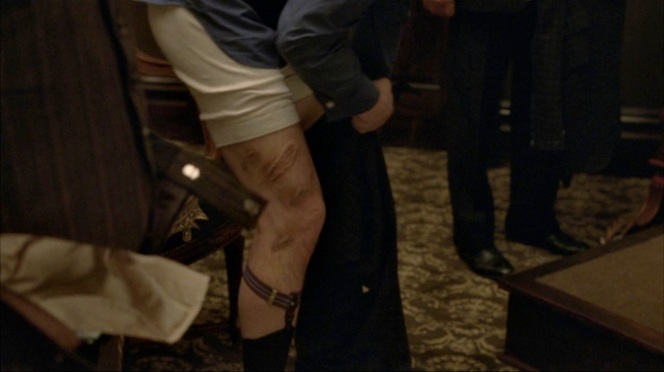 I guess the garters detract attention from the leg? Still... it's good that Jimmy wears pants in most scenes.