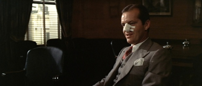 """Only when I breathe,"" Gittes quips in Yelburton's office about the new inconvenience of a nasal restriction."