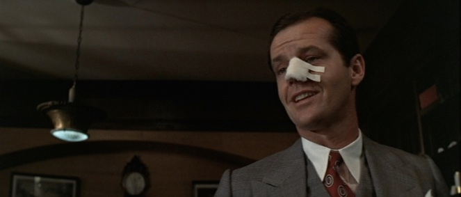 Gittes is no less smug (or nosy) after having his nostril sliced open.